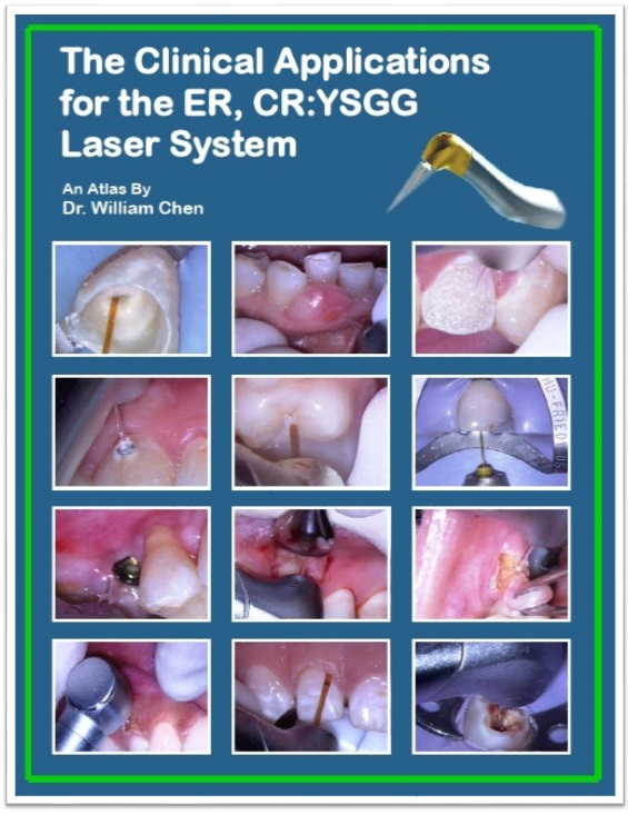 The Clinical Applications for the ER, CR:YSGG Laser Systsem
